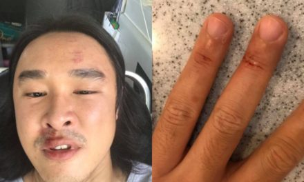 Singaporean TV actor Julian Hee bashed up at car park at Old Airport Road food centre