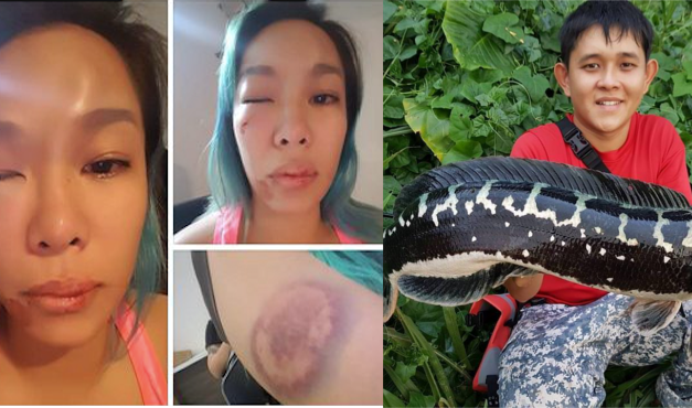 Woman gets beaten up, accuses her husband in a public Facebook post