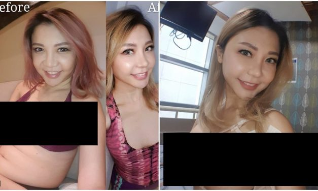 Foyce Le Xuan gets very honest with followers about her breast augmentation plastic surgery, still wins on 4D and sports betting